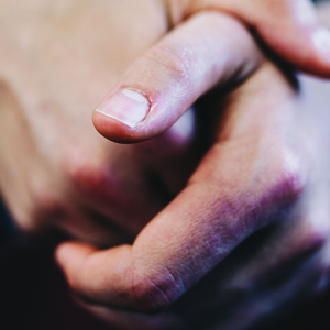 dhea and healing skin wounds